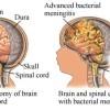 Si të diagnostikoni meningjitin