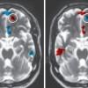 Si një skanim truri mund të parashikojë kohëzgjatjen e një lidhjeje