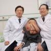 """Ja si është fytyra e """"burrit-elefant"""" pas ndërhyrjes së katërt kirurgjikale! (FOTO)"""